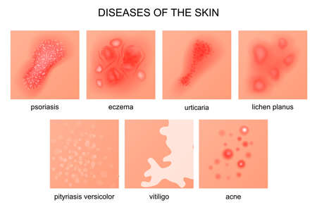 vector illustration of diseases of the skin Ilustração