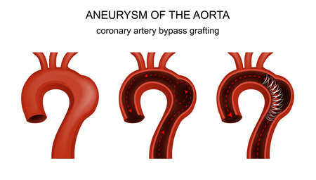 vector illustration of coronary artery bypass grafting