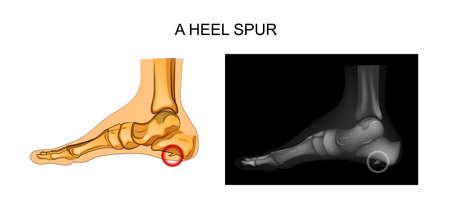 Illustration of a heel spur