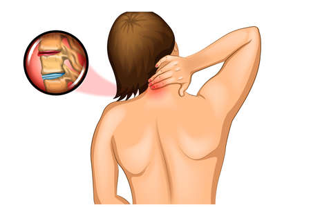 vector illustration of pain in the cervical spine