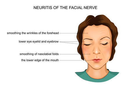 A vector illustration of neuritis of the facial nerve on white background.
