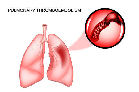 venous: Vector illustration of pulmonary thromboembolism. thrombosis of the vessel