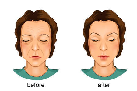 Vector illustration of a plastic face. before and after
