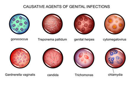 Vector illustration of pathogens of sexually transmitted infections