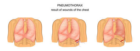 Illustration of a pneumothorax as a result of wounds of the chest. Illustration
