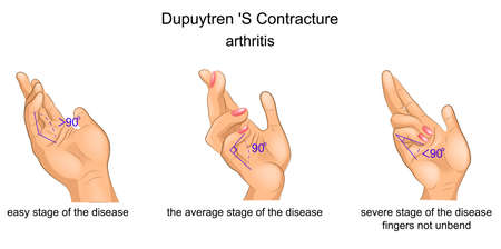 Vector illustration of a contracture Palmar aponeurosis Illustration