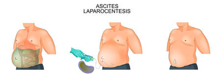 Vector illustration of a man suffering from ascites.