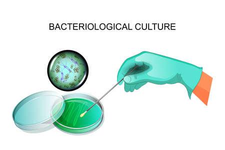 Illustratie van bacteriële inenting in het laboratorium.