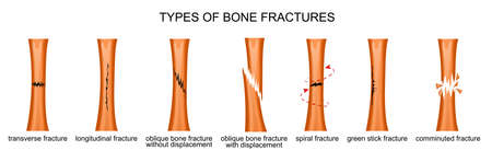 vector illustration of the types of bone fractures
