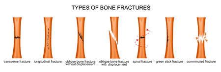ilustración vectorial de los tipos de fracturas óseas