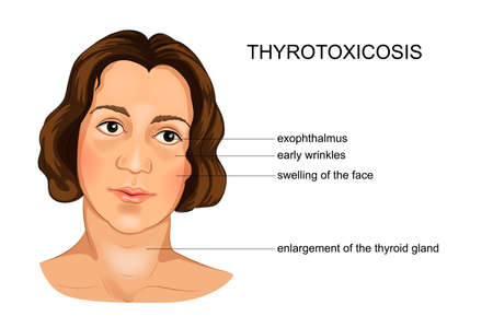 vector illustration of a girl suffering from hypothyroidism
