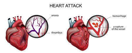 vector illustration of a myocardial infarction. thrombosis and hemorrhage