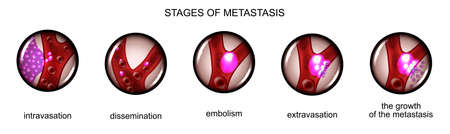 vector illustration of the stage of metastasis of cancer cells Illustration