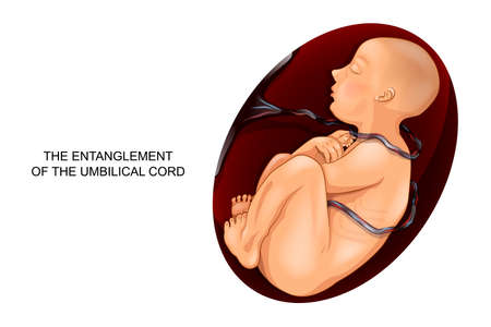 vector illustration of entanglement of umbilical cord around the fetus