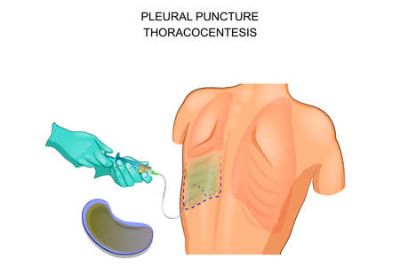 vector illustration of a thoracocentesis, a pleural puncture