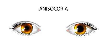 Vector illustration of Anisocoria. pupils of different sizes.