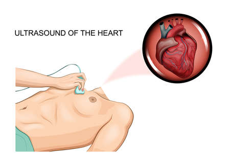 vector illustration of an ultrasound of the heart men