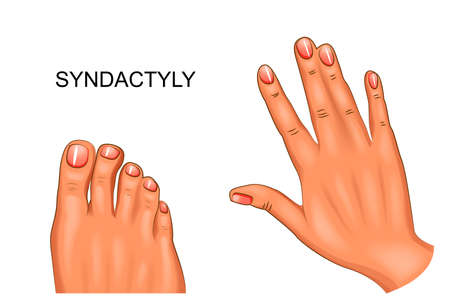 Vector illustration of syndactyly webbed hand and foot. Vettoriali