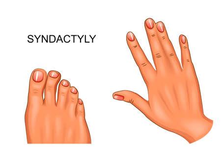 Vector illustratie van syndactyly zwemvliezen hand en voet.