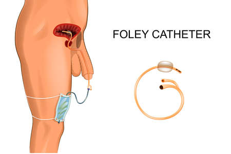 Illustration of a Foley catheter, a bag to collect urine. Stock Illustratie