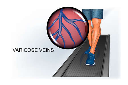 vector illustration of athlete's foot suffering from varicose veins