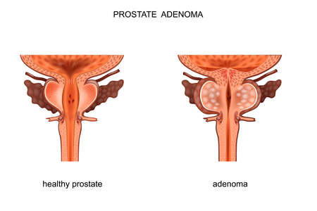 vector illustration of a healthy prostate and BPH