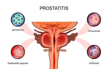 前立腺炎のベクトル図。性感染症、前立腺。
