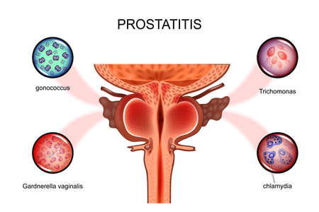 vector illustration of prostatitis. sexual infections, prostate.  Иллюстрация