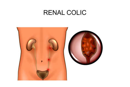 Vector illustration of a renal colic. locations