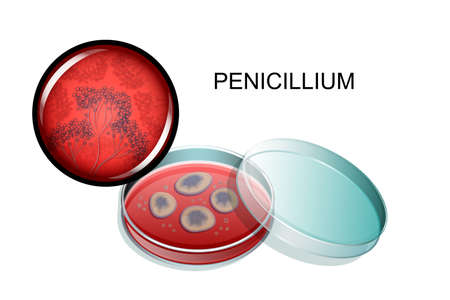 Vector illustration of a mold of penicillin, in a petri dish and under a microscope