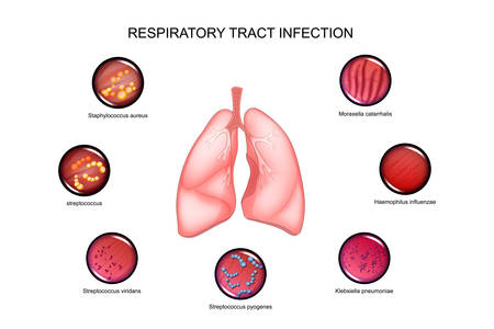 vector illustration of lungs and respiratory tract infections.
