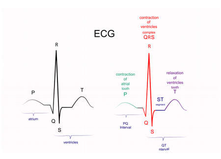 Illustration of ECG interpretation. ECG of a healthy person Ilustração