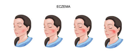 vector illustration of eczema face skin. dermatology 向量圖像