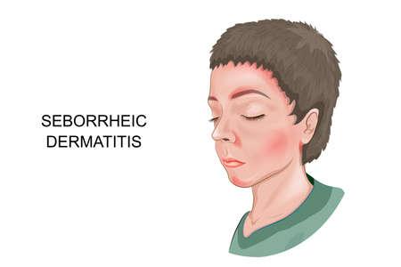 Vector illustration of seborrheic dermatitis of the skin