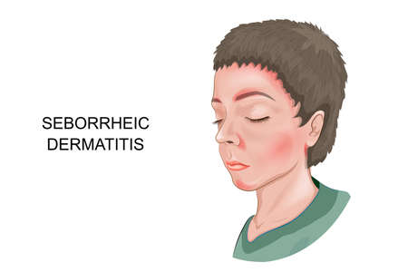 Vector illustration of seborrheic dermatitis of the skin