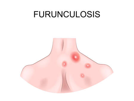vector illustration of chronic boils on the back of a man