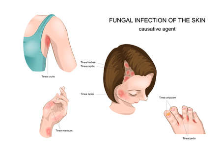 Illustration of nail, skin and hair fungus, graphic information.