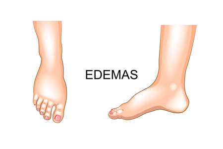 vector illustration of edema on feet. swelling Çizim