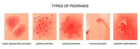 vector illustration of the types of psoriasis
