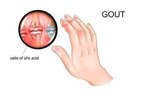 vector illustration of gout, arthritis of fingers Vectores