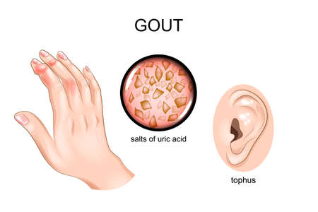 vector illustration of gout, arthritis, tofus on the ear