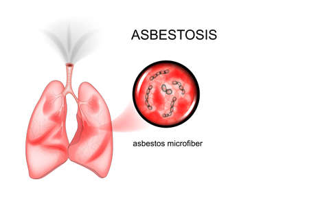 vector illustration of asbestos lung disease.