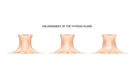 Vector illustration of the neck with enlarged thyroid gland