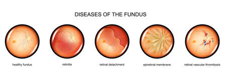 vector illustration of fundus inflammation, retinal detachment Illustration