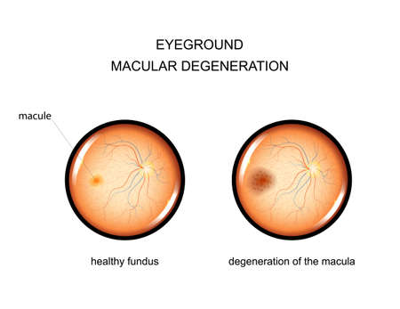 vector illustration of the fundus. degeneration of the macula