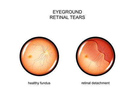 vector illustration of the fundus. retinal tears