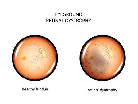 vector illustration of the fundus. retinal dystrophy