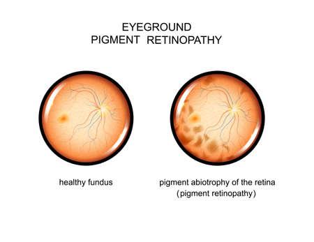vector illustration of the fundus. pigment retinopathy