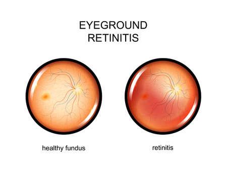 vector illustration of the eye fundus. retinitis