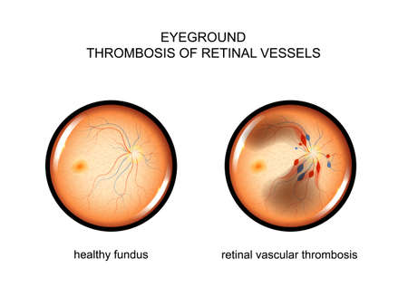 vector illustration of the fundus. retinal vascular thrombosis
